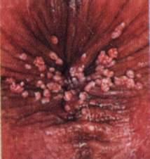 Das Bleichen der Haut des Körpers von den Pickeln
