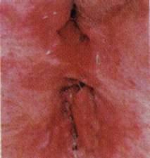Die Homöopathie bei seborejnom die Schuppenflechte